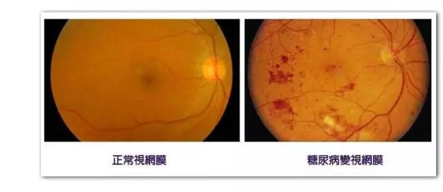 眼底病发病率上升 为不可逆性致盲重要因素